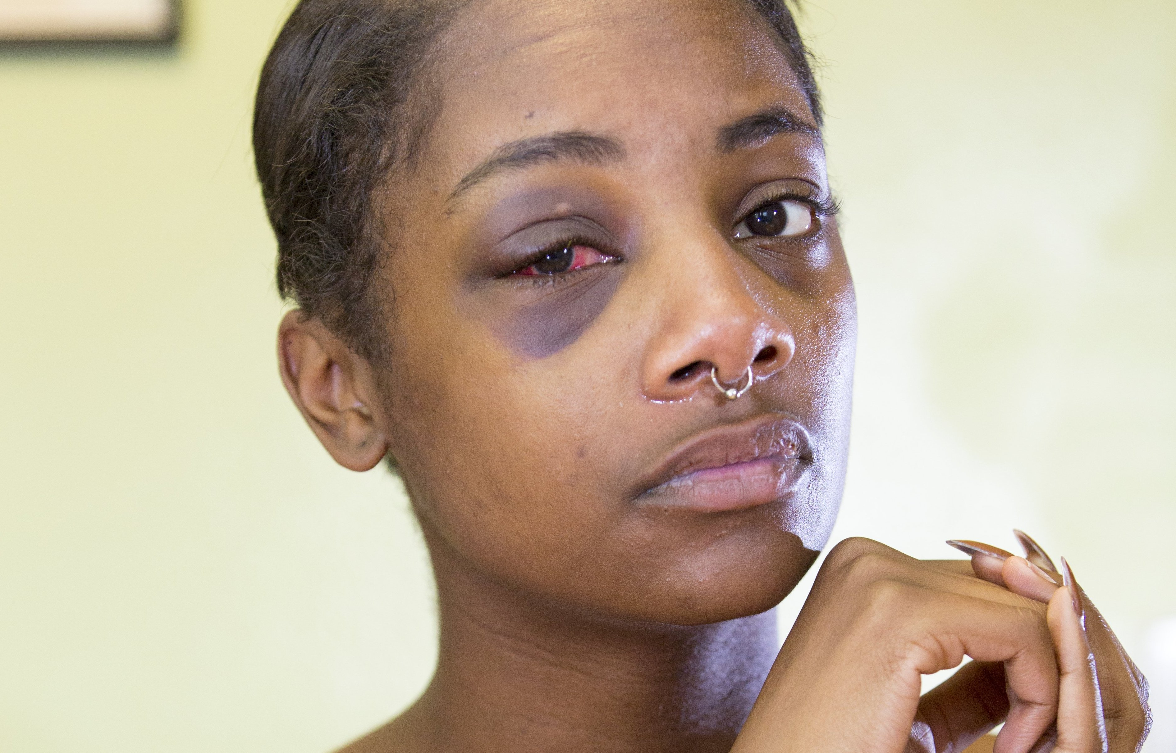A physically battered woman